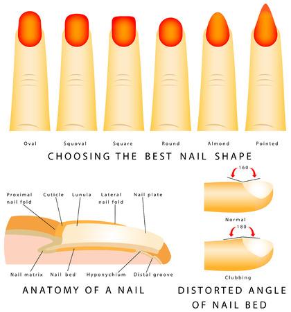 Nail shape  Different nail shapes  Anatomy of a nail  Distorted angle of nail bed  Illustration