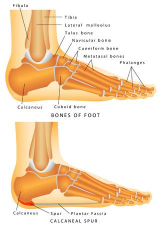 Anatomía humana - huesos del talón de espuela Pie y Tobillo - una protuberancia ósea en la superficie inferior plantar del calcáneo Ilustración de vector