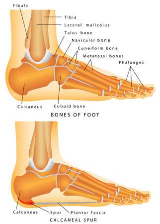 Human Anatomy - Bones of the Foot and Ankle  Heel spur - a bony protrusion on the plantar  bottom  surface of the calcaneus  Vector