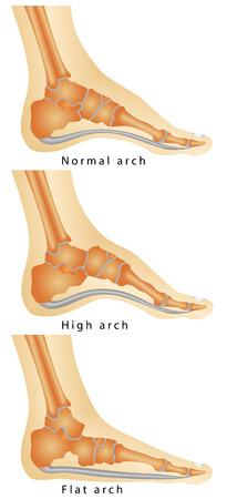 평면 다리의 발 세트, 흰색 배경에 질병의 발 여러 단계의 아치에서 높은 아치 류마티스 관절염의 아치
