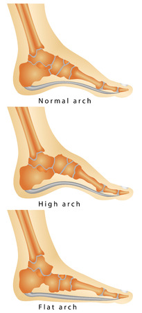 flatfoot: Arch of Foot  Set of flat foot, high arch  Rheumatoid Arthritis In Arch Of Foot  Various stages of the disease on white background Illustration