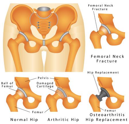hip fracture: Hip Fractura de cadera Fractura del cuello femoral conjunta osteoartritis de cadera artr�tico de la cadera articulaci�n Artrosis de reemplazo de cadera en un fondo blanco