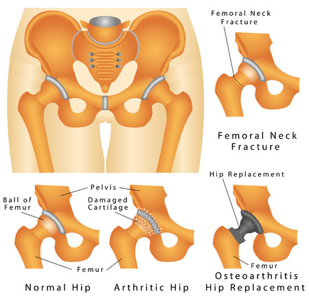 femoral: Hip joint  Hip fracture  Femoral Neck Fracture  Osteoarthritis of hip joint  Arthritic Hip  Osteoarthritis Hip Replacement on a white background Illustration
