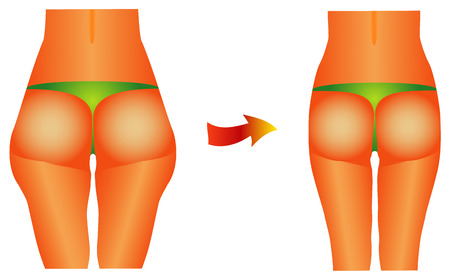 Female buttocks  Diet beauty before after female backside, hips on white background