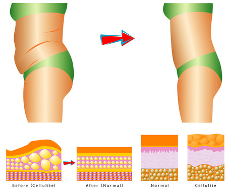 cellulite: Fat on belly  Cellulite - Woman s body before and after   Cellulite versus smooth skin Illustration