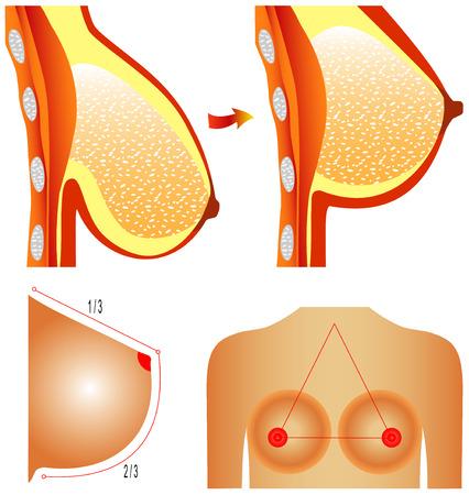 pechos: La cirug�a pl�stica de las Tetas de mama La cirug�a pl�stica de correcci�n muestra los m�todos de correcci�n de mama en el fondo blanco Vectores