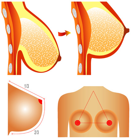 Plastic surgery of breast  Tits correction  Plastic surgery shows breast correction methods on white background