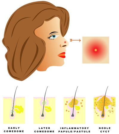 Acne Acne is onderverdeeld in vier soorten Comedonen, pukkels, puisten, knobbeltjes en cysten op witte achtergrond