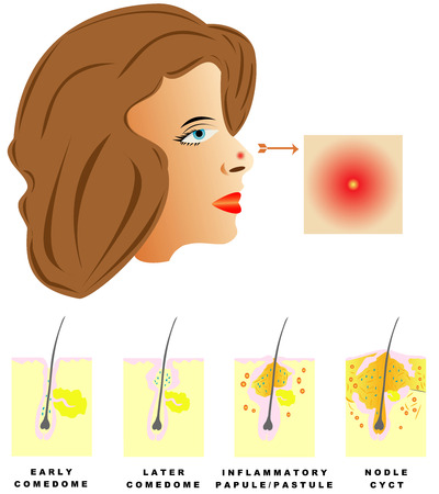Acne  Acne is divided into four types  Comedones, Papules, Pustules, Nodules and cysts on white background  Vectores