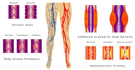 깊은 다리 정맥 만성 정맥 부전 펌프로 동맥 깊은 정맥 혈전증 정맥류 종아리 근육에있는 혈관 시스템 다리 동맥 경화