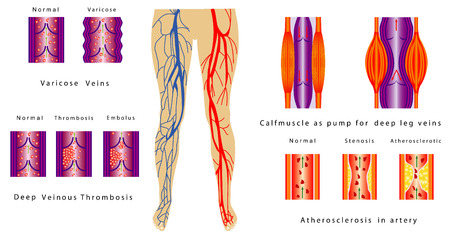 Vascular System Legs  Atherosclerosis in artery  Deep venous thrombosis  Varicose Veins  Calf muscle as pump for deep leg veins  Chronic venous insufficiency  Vector