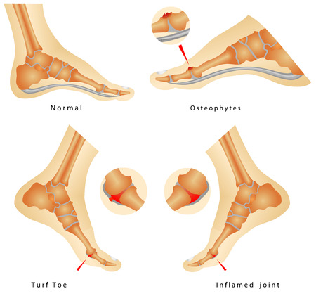 deviation: Turf Toe Injuries