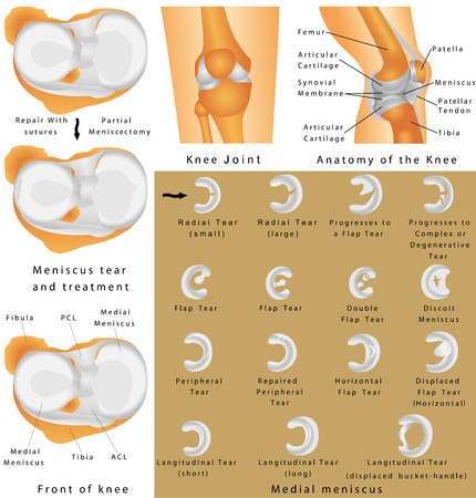 Human Knee Joint. Anatomy of the Knee. Menisci of the knee. Medial meniscus. Lateral meniscus. Meniscus tear and surgery Vettoriali