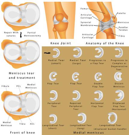 de rodillas: Articulación de la rodilla humana. Anatomía de la rodilla. Meniscos de la rodilla. Menisco medial. Menisco lateral. Menisco lagrimal y la cirugía Vectores