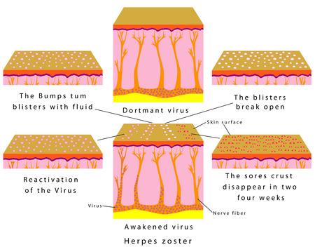 Herpes zoster. Aktiviert Virus. Reaktivierung des Virus - Herpes, Windpocken und Gürtelrose. Progression von Herpes, Windpocken, Herpes zoster. Schlafenden Virus Vektorgrafik