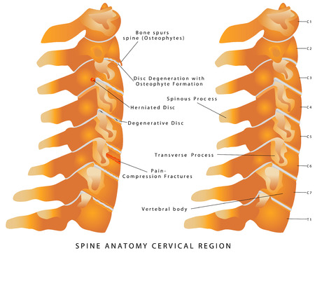 degenerative: Cervical Spine. Spine anatomy cervical region. Cervical Spine - Lateral view (Side view). Neck Pain - Disc (Degenerative, Bulging, Herniated, Thinning, Degeneration with Osteophyte)