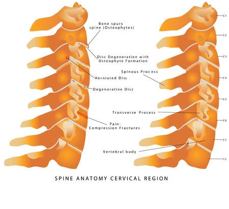 spine pain: Columna cervical. Spine anatom�a regi�n cervical. Columna cervical - Vista lateral (Vista lateral). Dolor de cuello - Disco (degenerativa, Pando, Hernia, Adelgazamiento, Degeneraci�n con osteofitos) Vectores