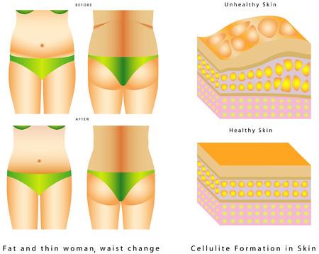 腰に脂肪します。女性の体の前に、と後。脂肪と薄い女性の前に、と後。白い背景の上の皮膚のセルライトの形成。  イラスト・ベクター素材