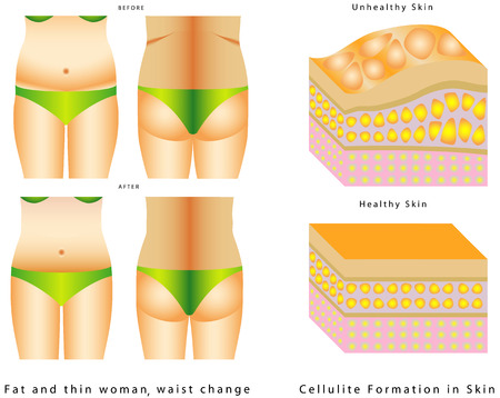 cellulit: Fat egy derék. Női test előtt és után. Kövér és sovány nő előtt és után. Narancsbőr kialakulása a bőr, fehér alapon.
