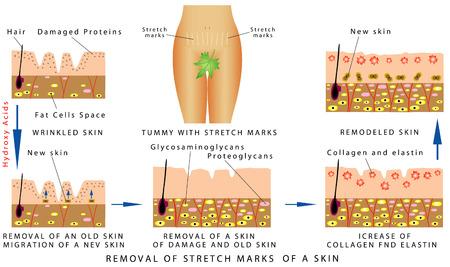 cellulit: Stretch Marks egy bőrt. Pocakját a striák. Eltávolítása striák a bőrön fehér alapon Illusztráció
