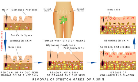 obsolete: Stretch Marks of a skin. Tummy with stretch marks. Removal of Stretch Marks of a skin on white background
