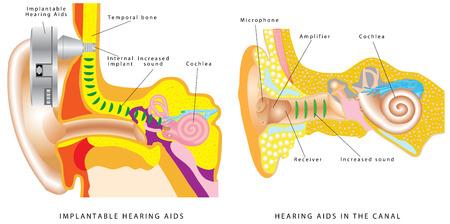 Audífono del oído. Los miembros con pérdida de audición - aparatos auditivos implantables y audífonos en el oído