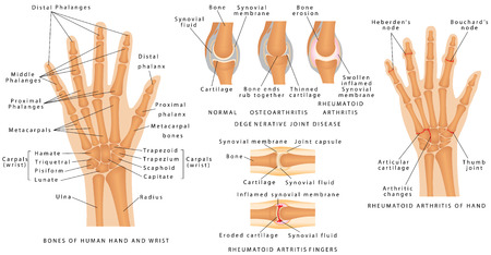 arthritis: Skeletal System Phalanges. Human hand bones anatomy. Skeleton of the hand. Degenerative joint disease. Bones of human hand and wrist. Rheumatoid Arthritis Fingers.