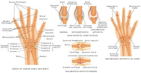 Skeletal System Phalanges. Menselijke hand beenderen anatomie. Skelet van de hand. Degeneratieve gewrichtsaandoening. Beenderen van de menselijke hand en pols. Reumatoïde Artritis Fingers. Stock Illustratie