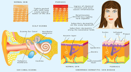 Seborrhei Dermatitis skin disease. Ear Canal Eczema. Redness of external ear canal psoriasis. Seborrheic dermatitis on the scalp dandruff. Seborrheic dermatitis along the nasolabial folds
