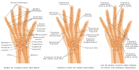Various types of hand fractures. Fractures of both the radius and ulna. Displaced Fracture and Fracture without displacement. Use of wires plates and screws to treat the various fractures Illustration