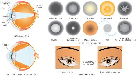 白内障。目の病気白内障。目の構造。白内障は、眼の中曇水晶です。眼の白内障が影響を受けます。白内障の種類