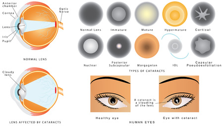 Cataract. Eye disease cataract. The structure of the eye. A cataract is an clouding crystalline lens inside the eye. Eye cataracts affected. Types of Cataract Illustration