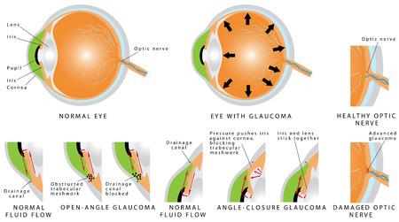 Glaucoom is een oogziekte en een belangrijke oorzaak van blindheid. Open - hoek glaucoom. Hoek - glaucoom. De oogzenuw is gewond. De intra-oculaire druk wordt verhoogd. Fasen van glaucoom Stock Illustratie