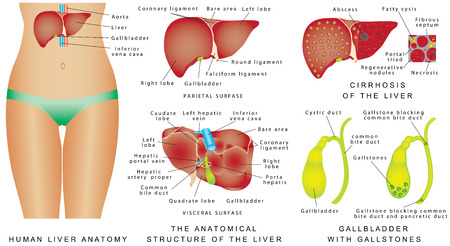 bile: Liver and Gallbladder. Cirrhosis. Major anatomical landmarks and four lobes of liver. Anatomical structure of liver, gallbladder and bile ducts. Interior of gallbladder. Gallbladder with gallstones Illustration
