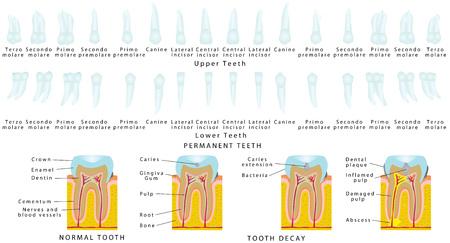 tooth: Permanent Teeth. Upper Teeth. Lower Teeth. Tooth decay. Set of the stabilized teeth on a white background. Illustration