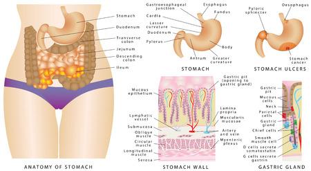 stomach pain: Stomach anatomy. Stomach anatomy of the human internal digestive organ. A gastric gland. Stomach wall. Stomach Cancer Stage. Stomach ulcers, or gastric ulcers on white.