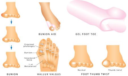 Bunion. Foot with a painful bunion. Hallux valgus or bunion formation of the left foot. Foot thumb twist. Separator to the toes