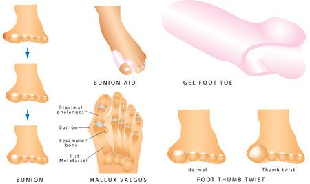 Juanete. Pie con un juanete doloroso. hallux valgus o juanete formación del pie izquierdo. Pie de torsión pulgar. Separador para los dedos de los pies Ilustración de vector