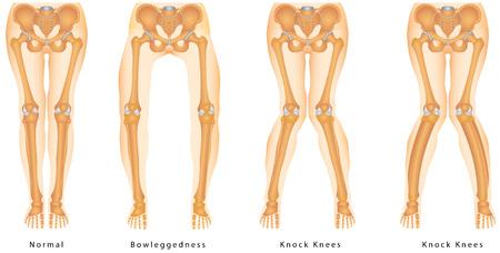 Fizyczne deformacja nóżek Ilustracje wektorowe
