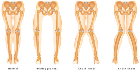 Körperliche Fehlstellung der Beine Vektorgrafik