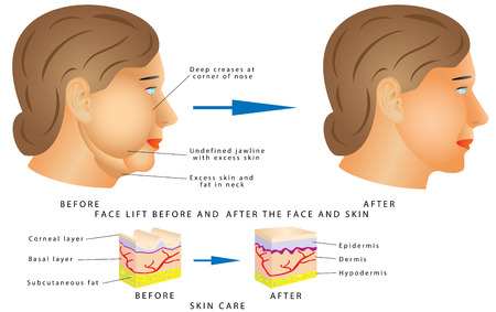 wrinkled face: Ageing face changes. Face lift before and after treatment. Beauty concept skin aging. Anti-aging procedures, rejuvenation, lifting, tightening of facial skin, restoration of youthful skin anti-wrinkle