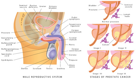 fertility: Male Genitourinary System. Anatomy of the male reproductive system. Stages of prostate cancer on a white backdrop Illustration