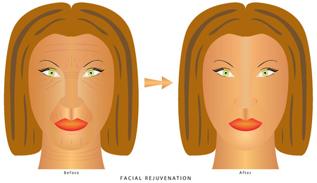 retouch: Womans face before and after plastic surgery, cosmetic and aesthetic procedures. Anti-aging procedures, rejuvenation, lifting, tightening of facial skin, restoration of youthful skin anti-wrinkle