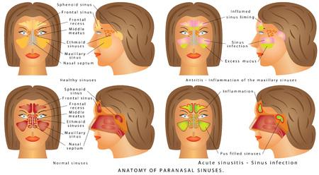 Human Anatomy - Sinus Diagram. Anatomy of the Nose. Nasal cavity bones. Anatomy of paranasal sinuses. Sinusitis - Antritis - It is the inflammation of the maxillary sinuses.