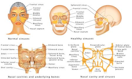 Senos de la nariz. Anatomía Humana - Diagrama Sinusal. Anatomía de la nariz. Huesos de la cavidad nasal. Anatomía de los senos paranasales. Sinusitis - Es la inflamación de los senos maxilares Ilustración de vector