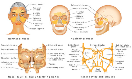 Sinuses of Nose. Human Anatomy - Sinus Diagram. Anatomy of the Nose. Nasal cavity bones. Anatomy of paranasal sinuses. Sinusitis - It is the inflammation of the maxillary sinuses Illustration