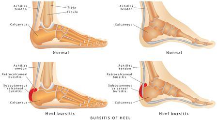 발 뒤꿈치 활액낭염. 정상적인 발 뒤꿈치와 발을 가진 Haglund의 기형과 활액낭염