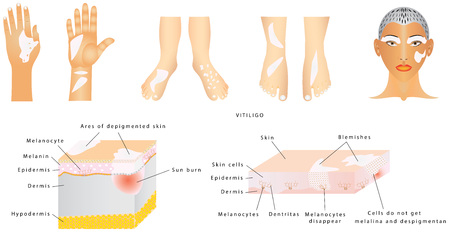Vitiligo - Is a skin condition characterized by parts of the skin losing their pigment. Vitiligo is a medical condition causing depigmentation of patches of skin Stock Vector - 85936078