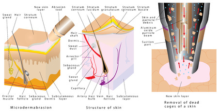 Microdermabrasion - Diamond dermabrasion. Diamond dermabrasion - procedure repair facial skin. Removal of dead skin. Mechanical peeling skin. Cross-section of a skin layers Illustration