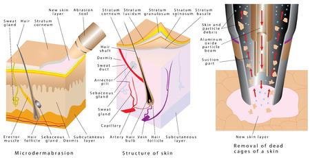 Microdermoabrasão - dermabrasão diamantada. Dermoabrasão diamantada - procedimento repara a pele facial. Remoção da pele morta. Pele mecânica descascando. Seção transversal de camadas de pele